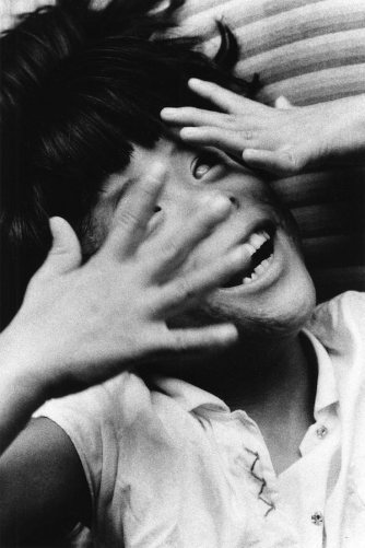 """Gemella non vedente"", 1957, dalla serie ""Hiroshima"" 457 x 560 mm. (Ken Domon Museum of Photography)"